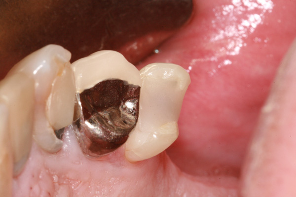 Crowns And Bridges Advanced Dentistry Amp Dental Implant