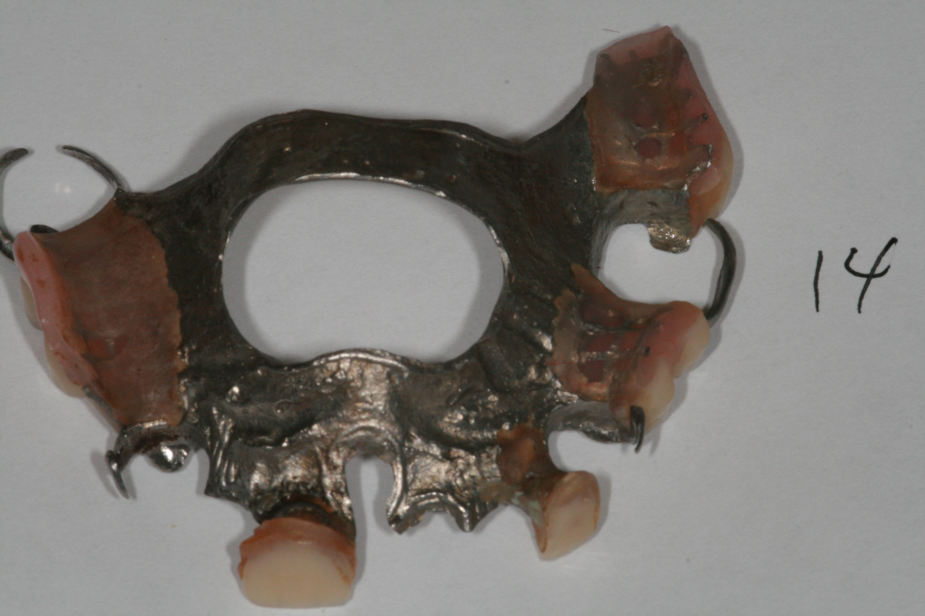 Partial denture at Advanced Dentistry Implant Center