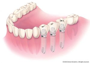 Dental Implants made by the Dr. Russell Kiser