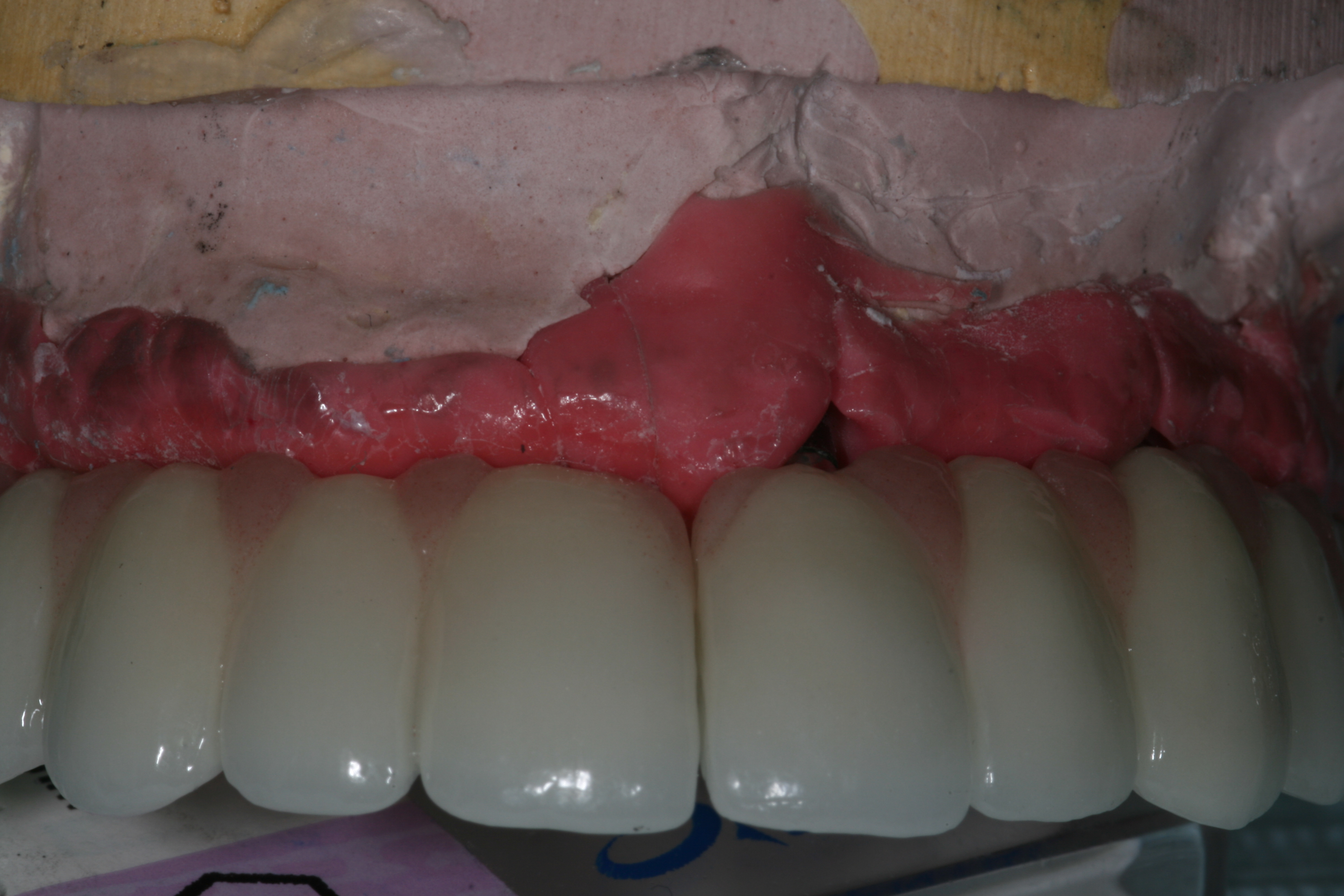 thesis dental implants