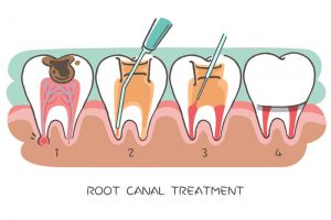 Root Canal; When Do I Need One