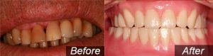 All on four Dental Implants in Mansfield, OH